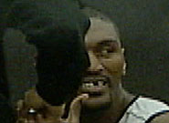 07118184033_ron-artest-tooth-185.jpg